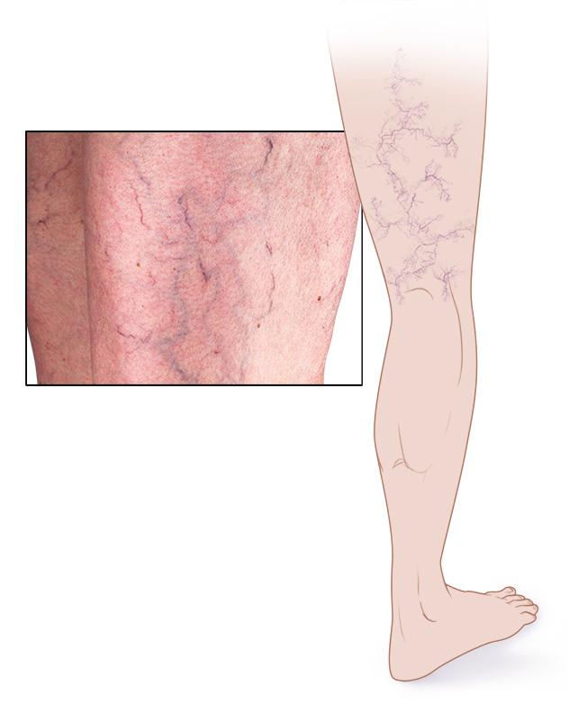 an02027 im04207 mcdc7 spider veinsthu jpg - Κιρσοί στα πόδια : Όλα όσα πρέπει να ξέρετε.