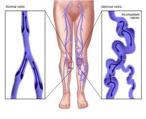ds00256 im02124 ww5rp30t jpg 300x245 - ΚΙΡΣΟΙ ( φλεβίτιδα ) στα πόδια: ΔΙΑΓΝΩΣΗ - ΘΕΡΑΠΕΙΑ
