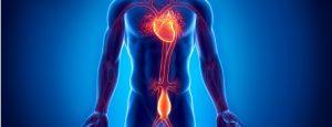 aorticaneurysm 300x115 - ΑΝΕΥΡΥΣΜΑ ΚΟΙΛΙΑΚΗΣ ΑΟΡΤΗΣ