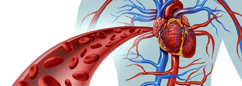 vascular - Τί θεραπεύει ο αγγειοχειρουργός ?